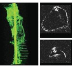 Feasibility of applying real-time optical imaging during bronchoscopic interventions for central airway Obstruction