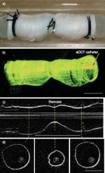 Measuring airway dimensions during bronchoscopy using anatomical optical coherence tomography