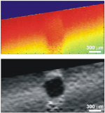 Improved measurement of vibration amplitude in dynamic optical coherence elastography