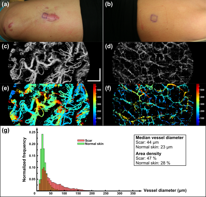 Microvasculature imaging of a burn scar and the corresponding normal skin. Photographs of: (a) a 5-month-old hypertrophic scar due to a friction burn on the left anterior thigh; and (b) the contralateral normal skin. The en face MIPs of the 3-D correlation maps of the scar and normal skin over a depth of ∼600 μm from the tissue surface at the centre of the 1 × 1 cm square outlines in (a) and (b), are shown in (c) and (d), respectively. The vasculature from (c) and (d) is, respectively, colour-coded by physical depth (μm), respectively, in (e) and (f). Histograms of blood vessel diameter measurements and the quantified vascular parameters are shown in (g). Scale bar indicates a distance of 0.5 mm.