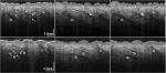 Reduction of image artifacts in three-dimensional optical coherence tomography of skin in vivo,
