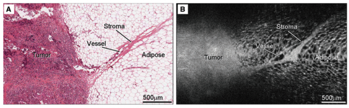 (a) H&E histology of a tumour margin; (b) longitudinal reconstructed OCT image of the tumour margin, with the horizontal axis aligned with the direction of needle retraction during scanning