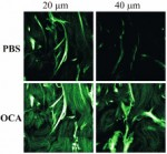 Contrast and depth enhancement in two-photon microscopy of human skin ex vivo by use of optical clearing agents