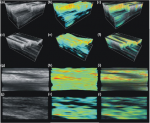 In vivo three-dimensional optical coherence elastography