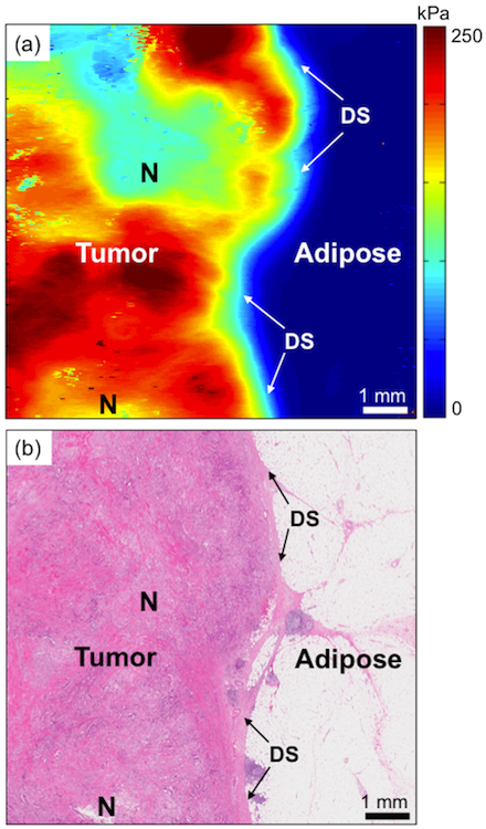 Optical palpation image of human breast cancer tissue and corresponding histology. N = necrosis. DS = desmoplastic stroma.
