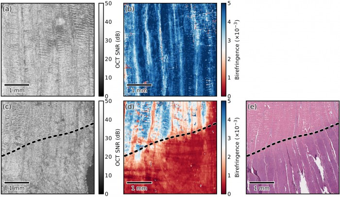 Example of en face parametric birefringence imaging using PS-OCT applied to a section of heat-damaged porcine tendon (Reproduced from [3]). (a) En face OCT and (b) parametric birefringence images of the sample before heating. (c) En face OCT and (d) parametric birefringence images of the sample after the lower half of the sample was immersed into heated (69 °C) physiological Krebs solution for 5 minutes. (e) Haematoxylin and eosin (H&E) stained histological section corresponding to the region shown in (c) and (d). The dashed lines indicate the location of the liquid-air boundary during heating. The results of the heat damage are clearly visible in the histology (purple region), and the parametric birefringence image (red region).