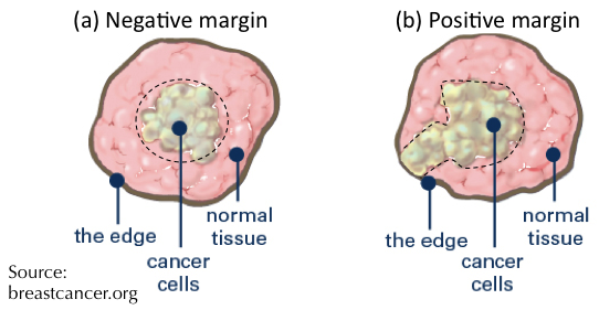 Fig. 1. Illustrations of (a) negative and (b) positive tumour margins following breast surgery