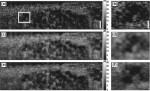 Speckle reduction in optical coherence tomography images using tissue viscoelasticity