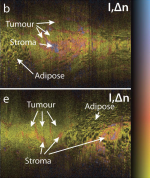 Deep tissue volume imaging of birefringence through fibre-optic needle probes for the delineation of breast tumour