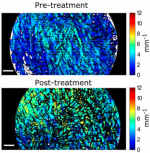 Investigation of optical attenuation imaging using optical coherence tomography for longitudinal monitoring of scars undergoing ablative fractional laser treatment