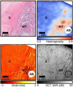 Simplifying the assessment of human breast cancer by mapping a micro-scale heterogeneity index in optical coherence elastography